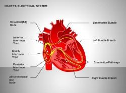 心电系统全彩效果图