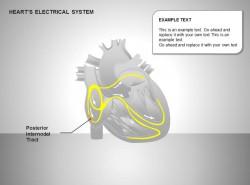 心电系统后节间部位图示说明