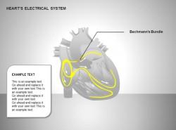 心电系统巴赫曼束图示说明