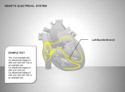 心电系统左束支图示说明