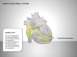 心电系统传导通路图示说明