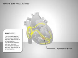 心电系统右束支图示说明