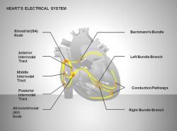 心电系统灰白效果图