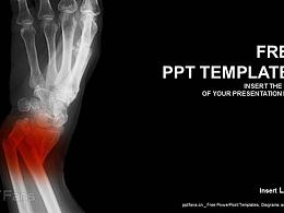 医疗影像PPT